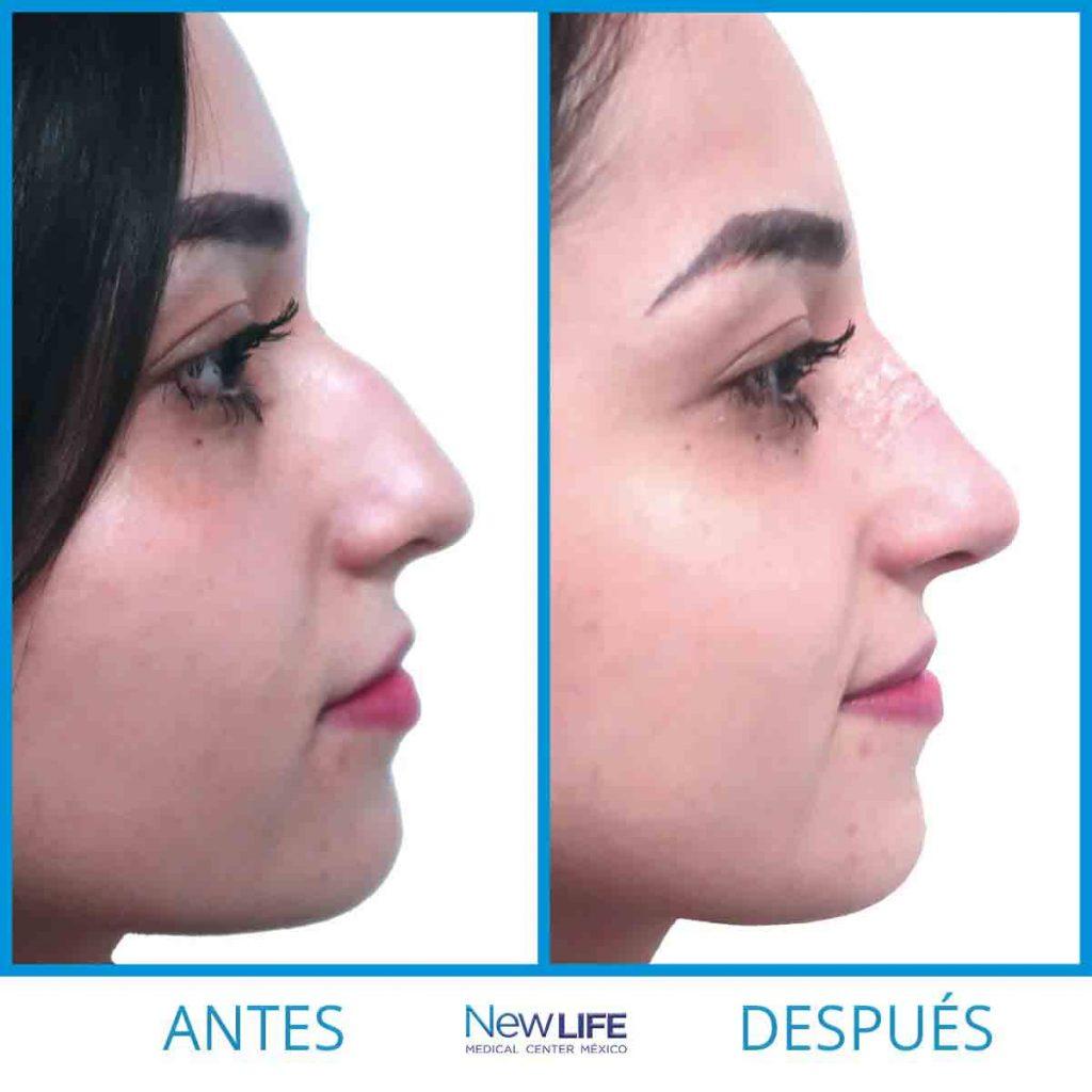 Elimina la giba de la nariz (Nariz aguileña)